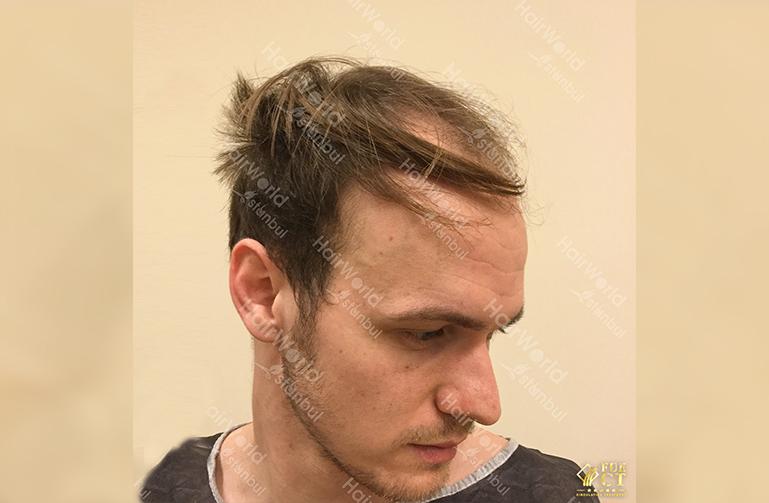 Ervaring HairworldIstanbul slide5 2