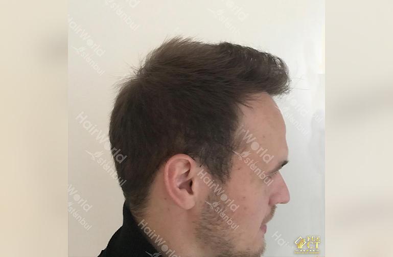 Ervaring HairworldIstanbul slide6 2