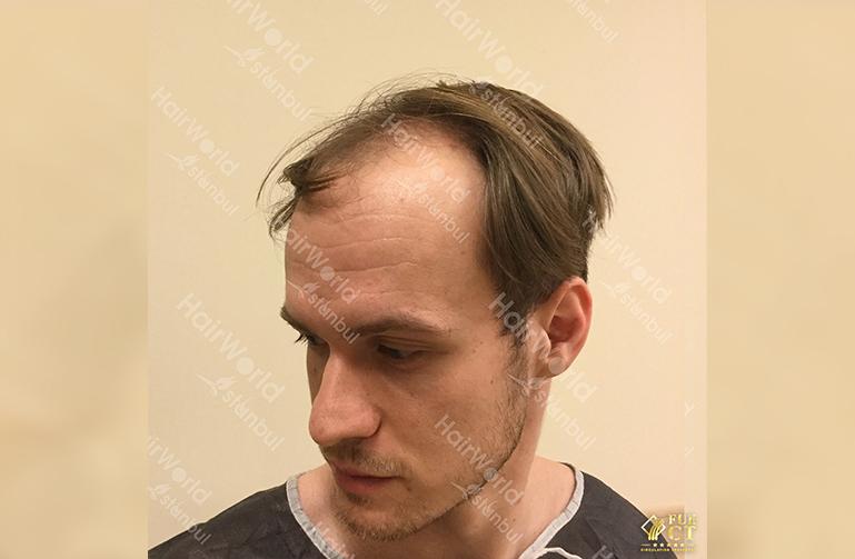 Ervaring HairworldIstanbul slide7 2