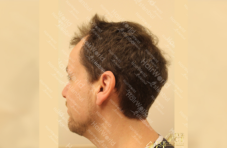 Ervaring HairworldIstanbul slide7