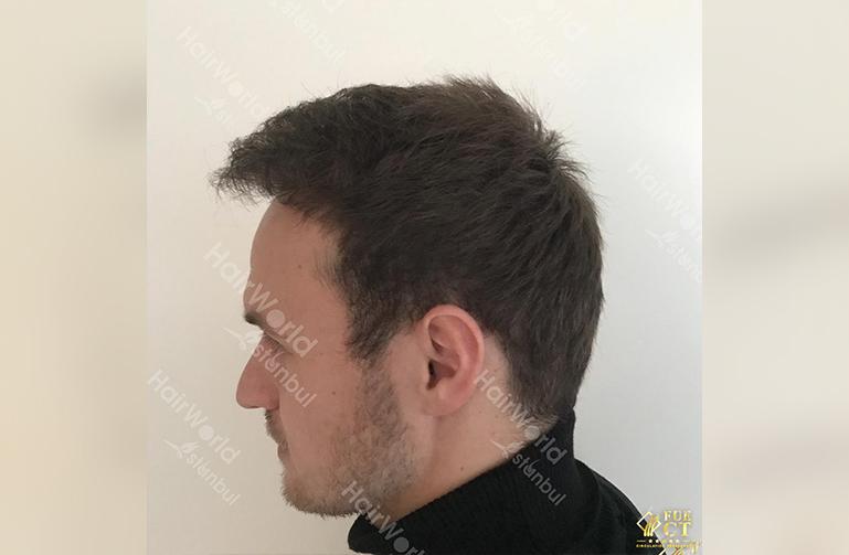 Ervaring HairworldIstanbul slide8 2