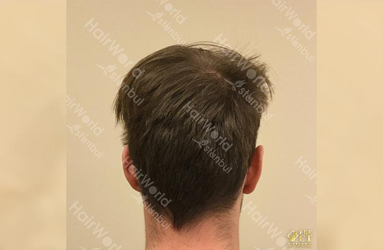 Ervaring HairworldIstanbul slide9 2