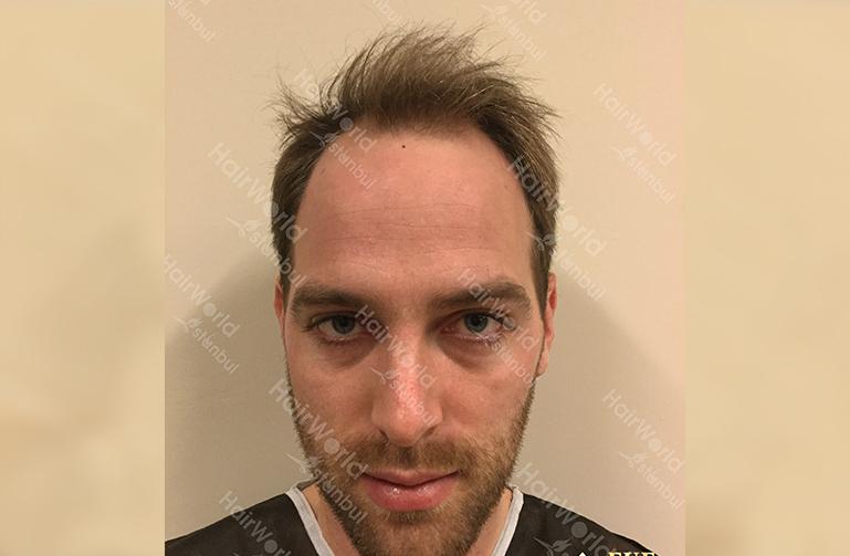 Ervaring HairworldIstanbul slind1 1