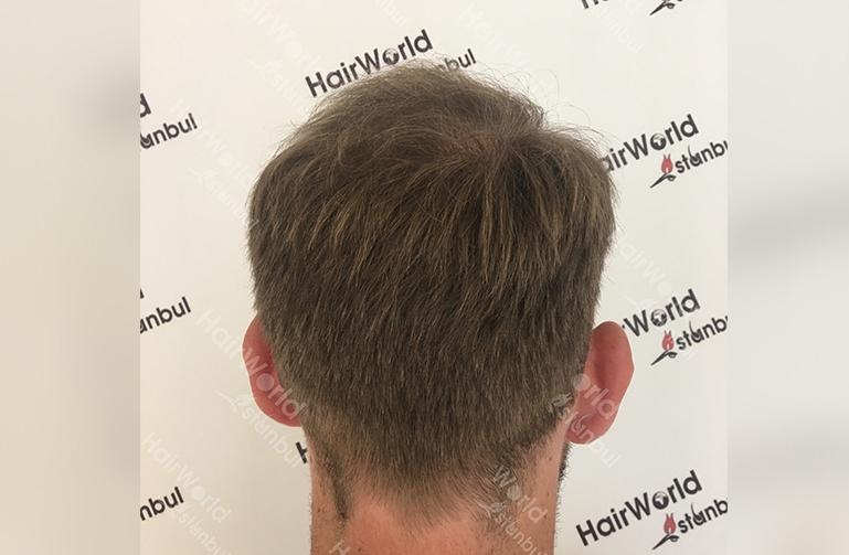 Ervaring HairworldIstanbul slind10
