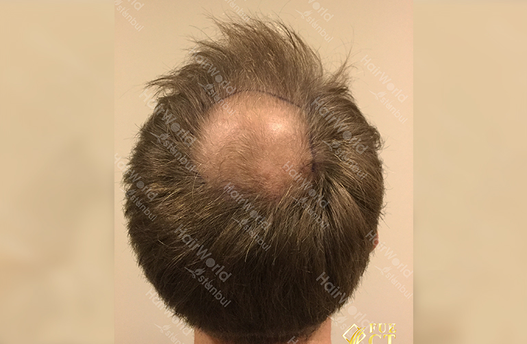 Ervaring HairworldIstanbul slind11