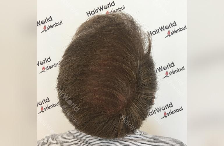 Ervaring HairworldIstanbul slind12