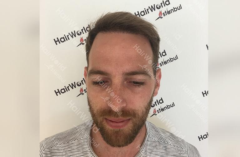 Ervaring HairworldIstanbul slind2 1