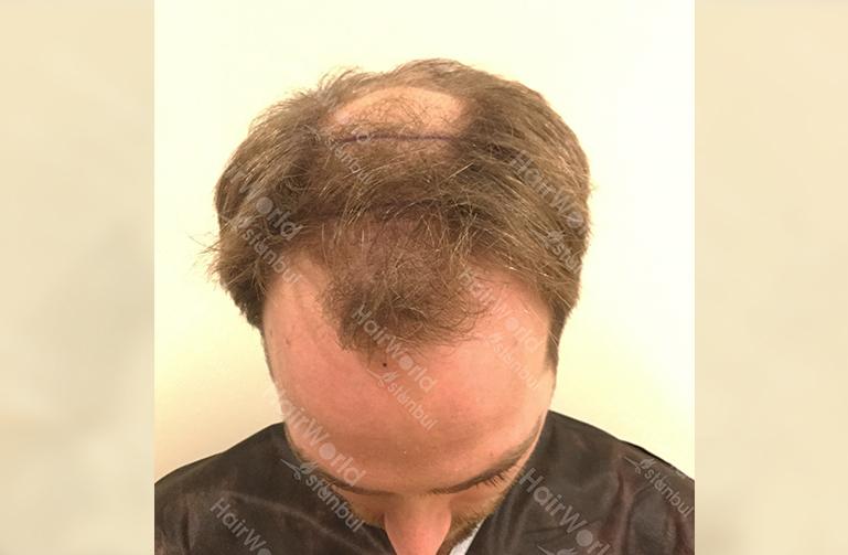 Ervaring HairworldIstanbul slind3 1