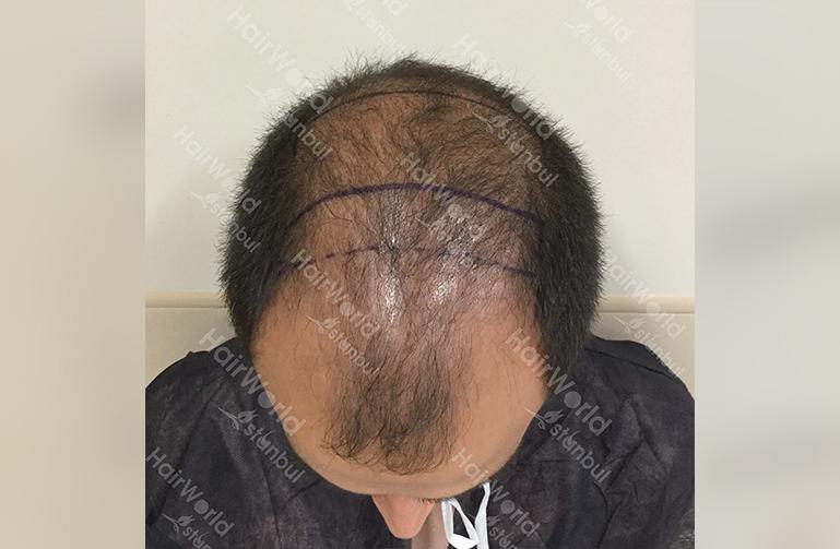 Ervaring HairworldIstanbul slind3