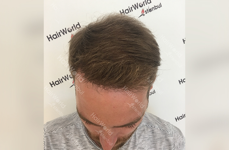 Ervaring HairworldIstanbul slind4 1