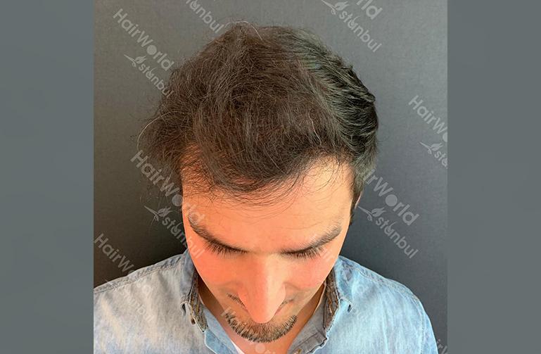 Ervaring HairworldIstanbul slind4