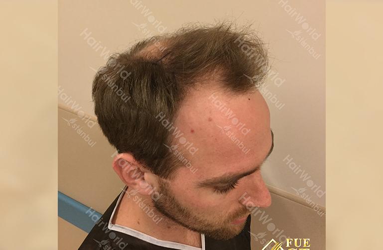 Ervaring HairworldIstanbul slind5 1
