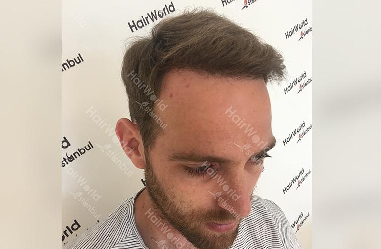 Ervaring HairworldIstanbul slind6 1