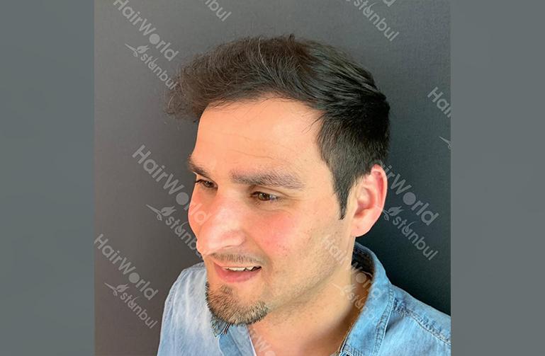 Ervaring HairworldIstanbul slind6