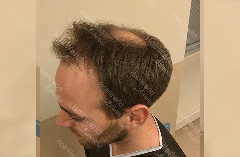 Ervaring HairworldIstanbul slind7 1