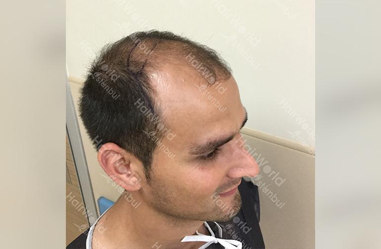 Ervaring HairworldIstanbul slind7