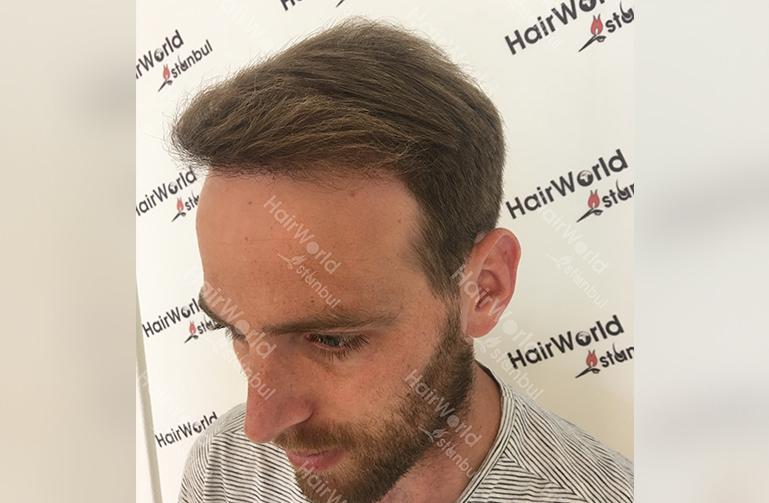 Ervaring HairworldIstanbul slind8 1