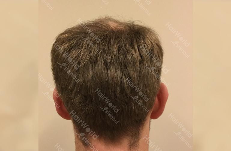 Ervaring HairworldIstanbul slind9