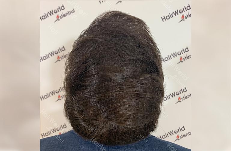 Ervaring HairworldIstanbul web10