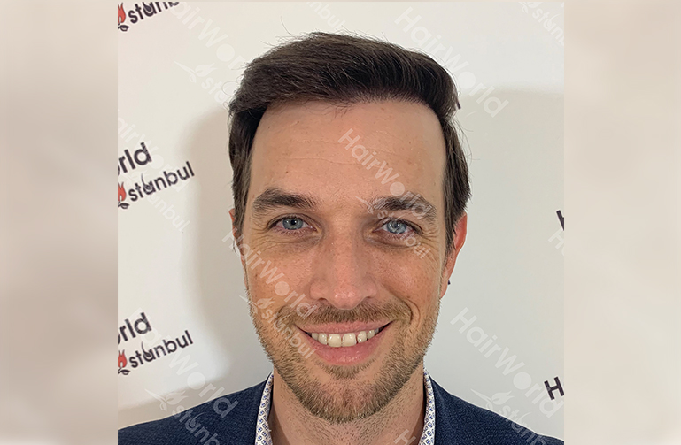 Ervaring HairworldIstanbul web2