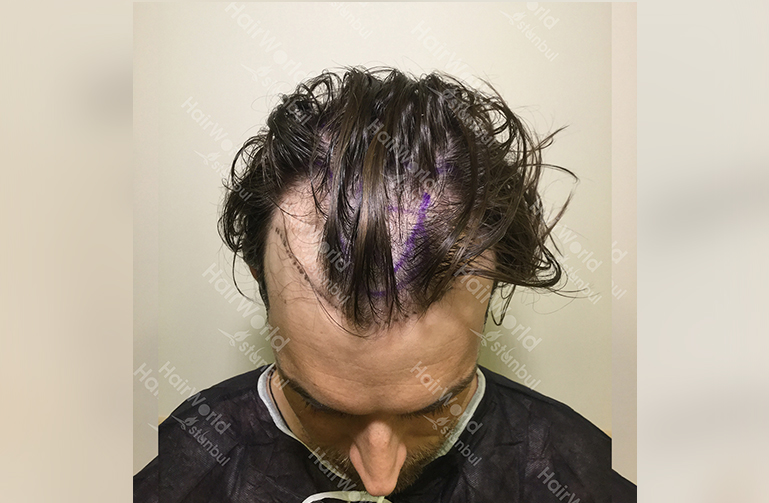 Ervaring HairworldIstanbul web3