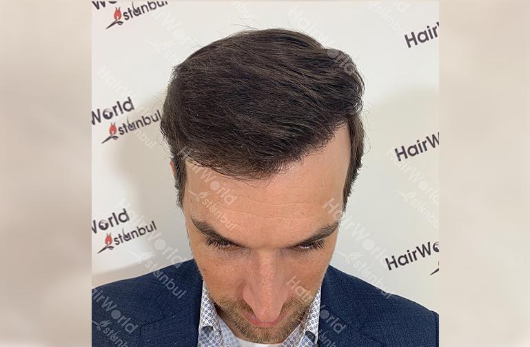 Ervaring HairworldIstanbul web4