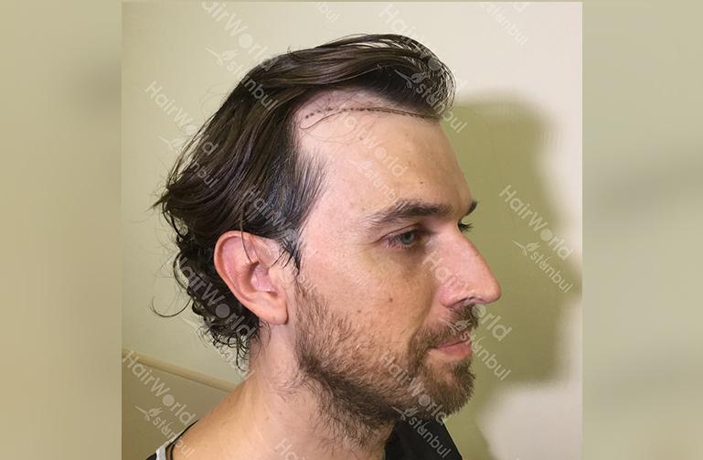 Ervaring HairworldIstanbul web5