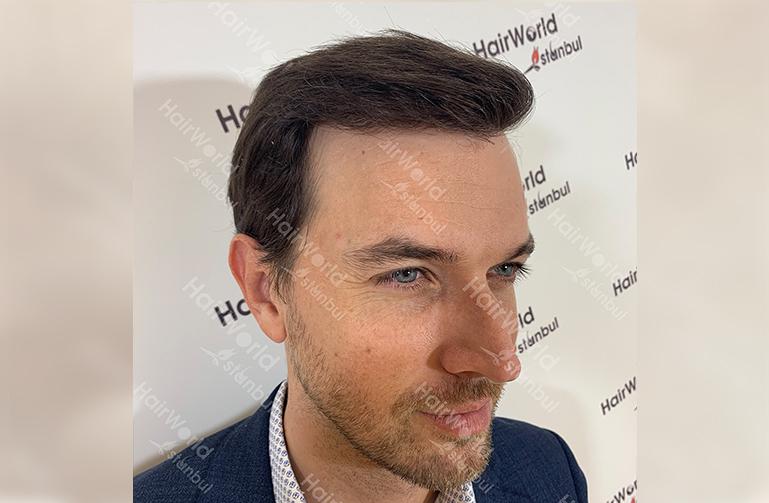 Ervaring HairworldIstanbul web6