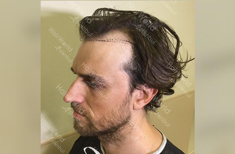 Ervaring HairworldIstanbul web7
