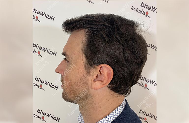 Ervaring HairworldIstanbul web8