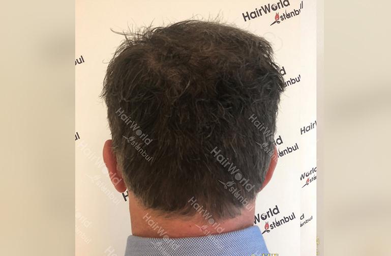 Ervaring Hairworldistanbul After10