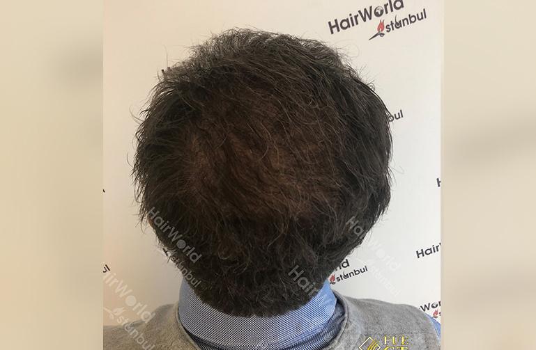 Ervaring Hairworldistanbul After12 1