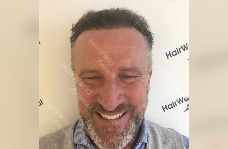 Ervaring Hairworldistanbul After2