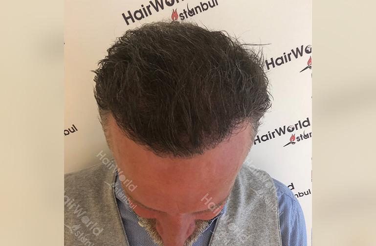Ervaring Hairworldistanbul After4