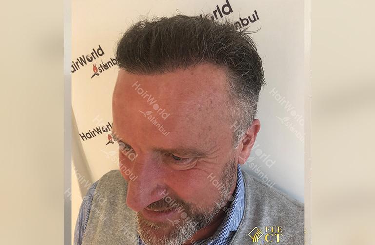 Ervaring Hairworldistanbul After6