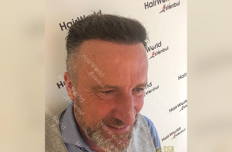 Ervaring Hairworldistanbul After8