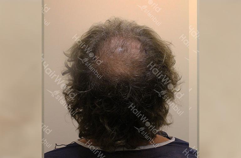 Ervaring Hairworldistanbul before11