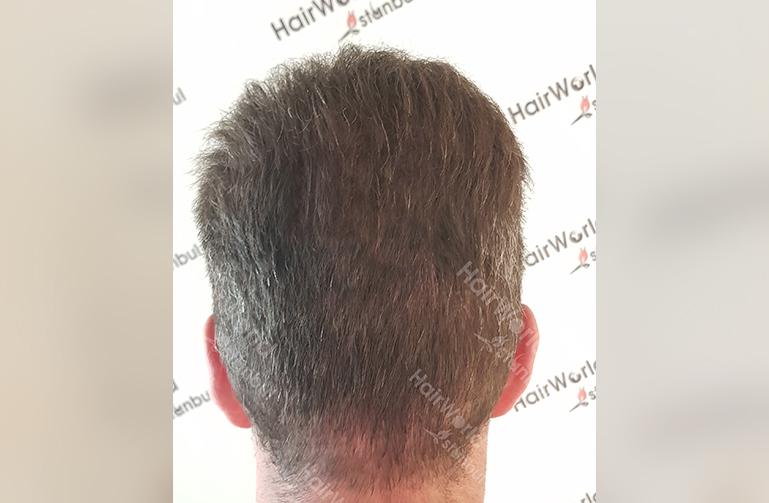 Ervaring Hairworldistanbul10