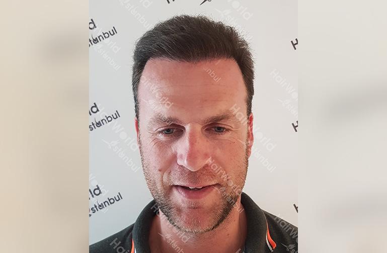 Ervaring Hairworldistanbul2 1