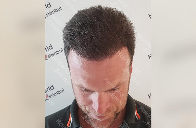 Ervaring Hairworldistanbul4