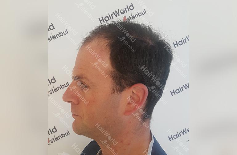 Ervaring Hairworldistanbul5