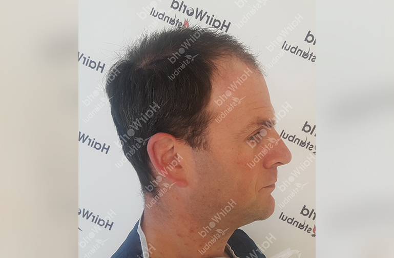 Ervaring Hairworldistanbul7