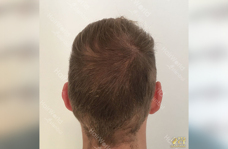 Ervaring HairworldIstanbul 10 2