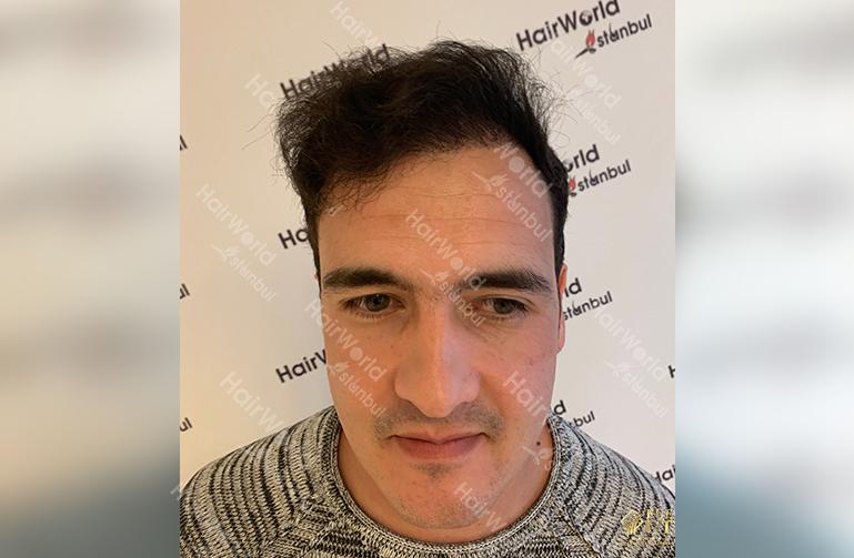 Ervaring HairworldIstanbul 2 2