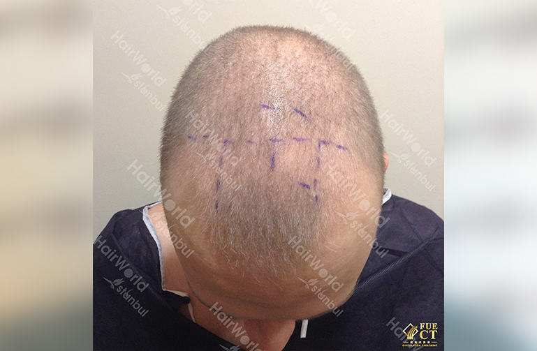 Ervaring HairworldIstanbul 3 2