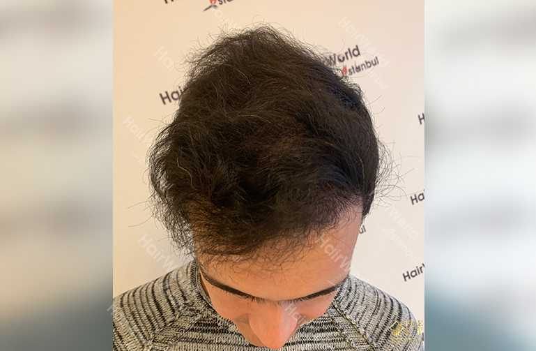 Ervaring HairworldIstanbul 4 2