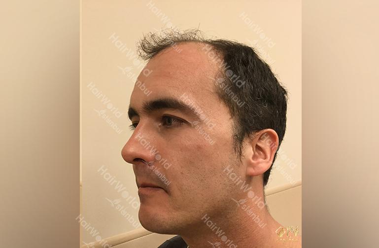 Ervaring HairworldIstanbul 7 1
