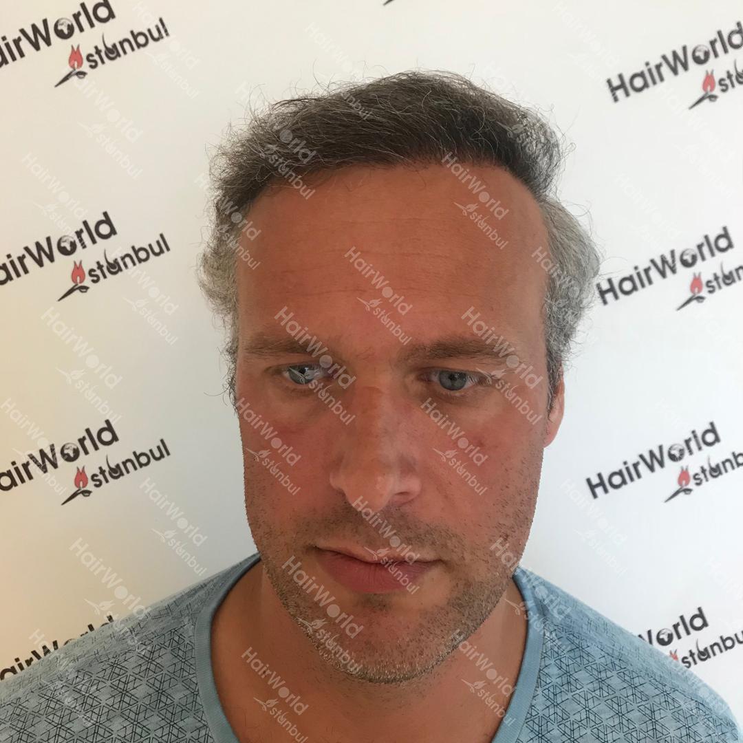 Ervaring HairworldIstanbul After