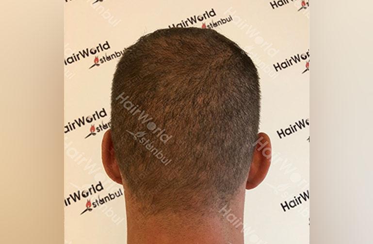 http://Ervaring-HairworldIstanbul-Frans-10