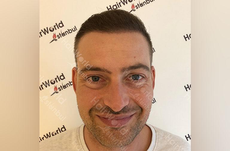 http://haartransplantatie-lange-frans-hairworldistanbul